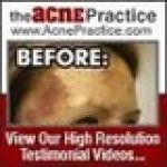 The Acne Practice, LLC Promo Code